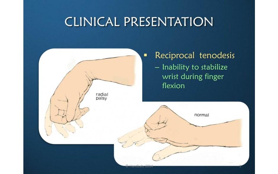 Radial Nerve: Rehabilitation & Orthotic Intervention: Online Video ...